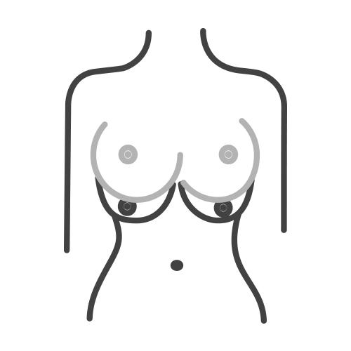 ridurre le dimensioni del seno attraverso la perdita di peso